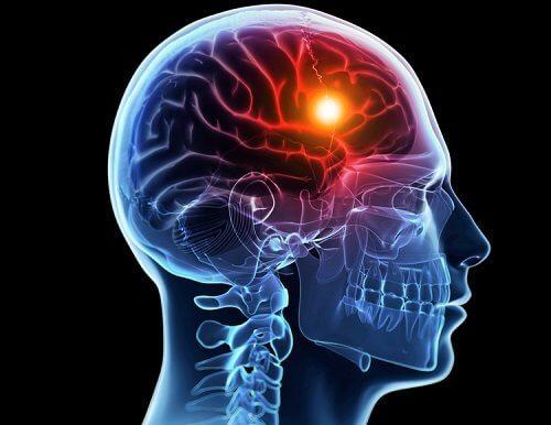 stroke, acv, ictus, derrame cerebral, hemiplejia, accidente cerebrovascular