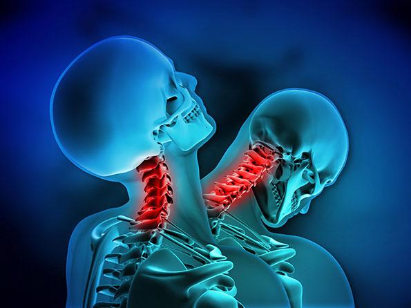 prevención dolor crónico
